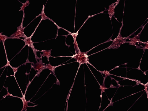 Dendrites In Brain Act As 'Mini Neural Computers', Better Brain's Processing Ability